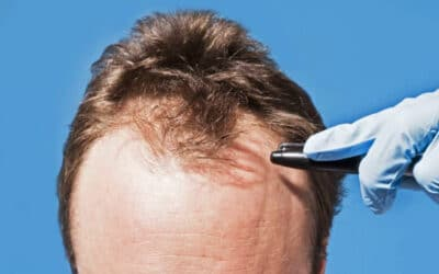 Who can Become a Hair Transplant Surgeon?